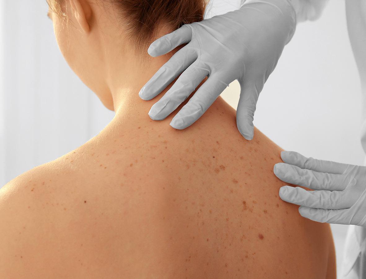 ARRT_Cesena_Ambulatorio_Dermatologia